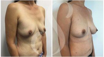 autologous-breast-fat-transfer-patient-1-angle