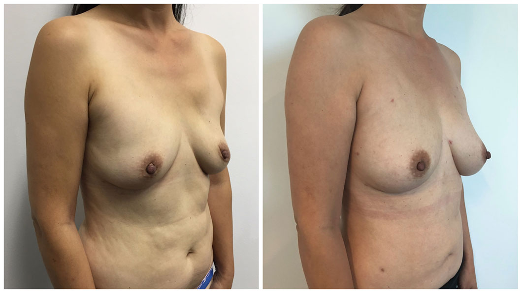 autologous-breast-fat-transfer-patient-1-angle