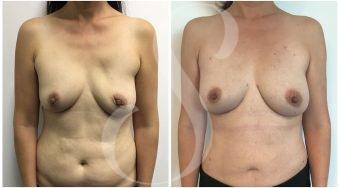 autologous-breast-fat-transfer-patient-1-front