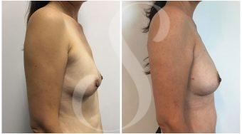 autologous-breast-fat-transfer-patient-1-side