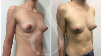 autologous-breast-fat-transfer-patient-2-front