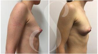 autologous-breast-fat-transfer-patient-2-side