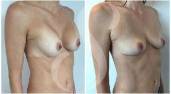 autologous-breast-fat-transfer-patient-3-angle