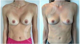 autologous-breast-fat-transfer-patient-3-front