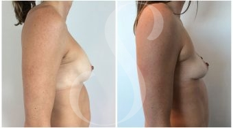 autologous-breast-fat-transfer-patient-3-side