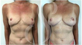 autologous-breast-fat-transfer-patient-4-front