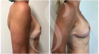autologous-breast-fat-transfer-patient-4-side