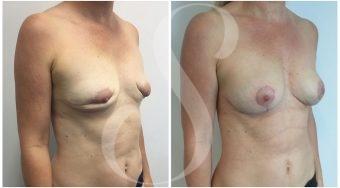 autologous-breast-fat-transfer-patient-5-angle