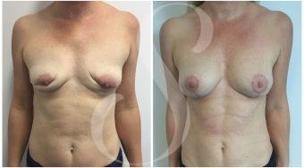 autologous-breast-fat-transfer-patient-5-front