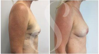 autologous-breast-fat-transfer-patient-5-side