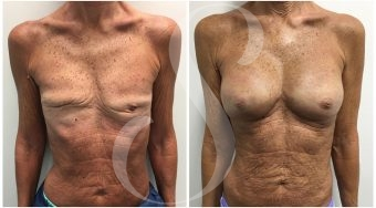 autologous-breast-fat-transfer-patient-6-front