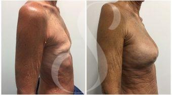 autologous-breast-fat-transfer-patient-6-side
