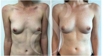 autologous-breast-fat-transfer-patient-7-front