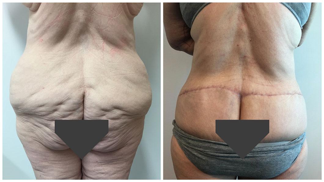 Circumferential-Body-Lift-Patient-1-ABD-buttocks