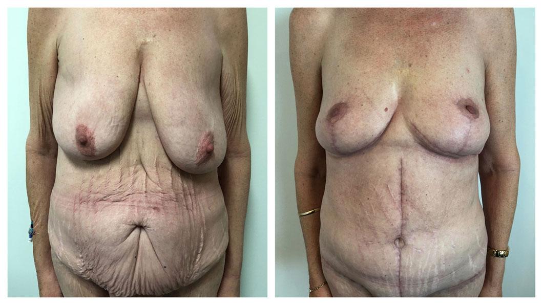 Circumferential-Body-Lift-Patient-3-Upper-Front