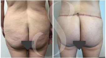Circumferential-Body-Lift-Patient-4-Buttocks
