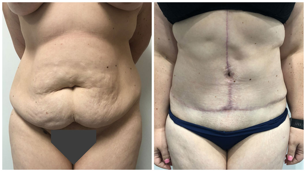 Circumferential-Body-Lift-Patient-6-ABD-Front