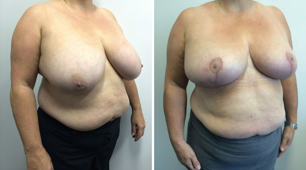 Patient one breast reduction before and after at an angle