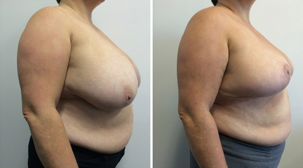 Patient 1 breast reduction before and after from the side