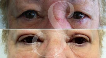 Patient 1 blepharoplasty before and after