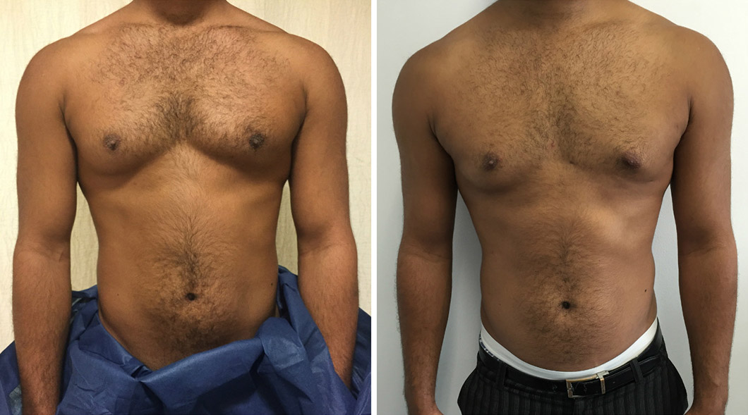 Patient 1 gynaecomastia before and after