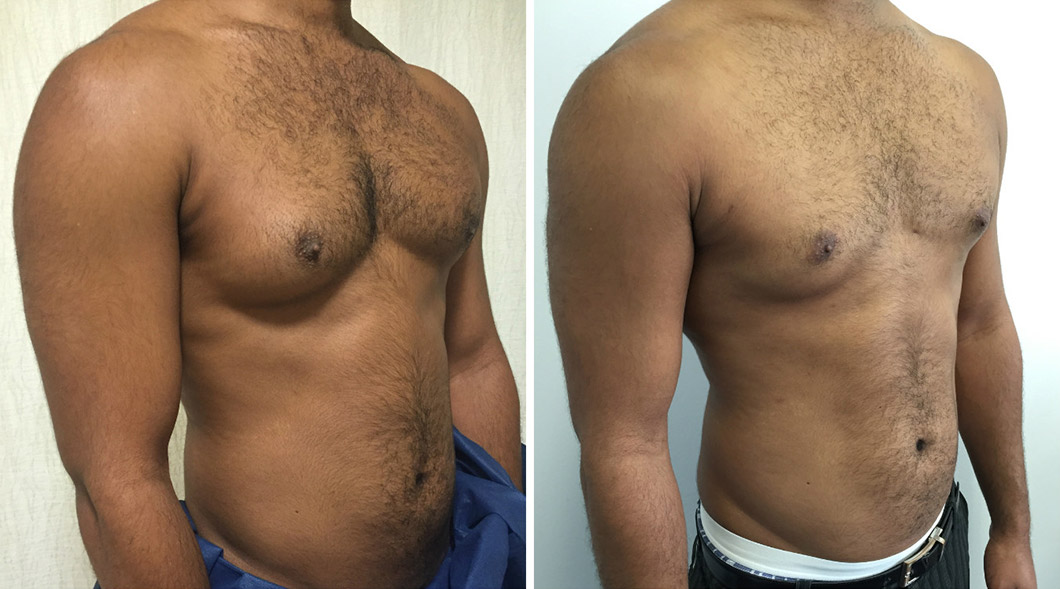 Patient 1 gynaecomastia before and after from an angle