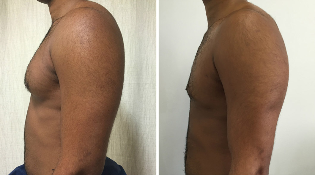 Patient 1 gynaecomastia before and after from the side