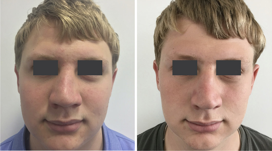 Patient 1 rhinoplasty before and after