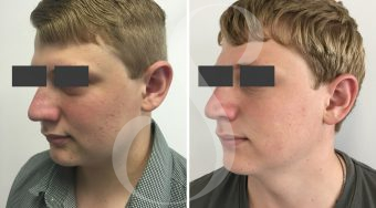 Patient 1 rhinoplasty before and after from an angle