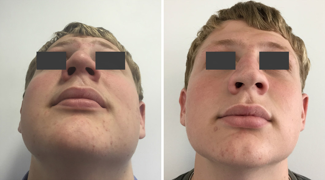 Patient 1 rhinoplasty before and after with the head back
