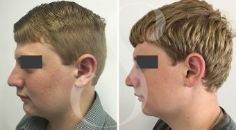 Patient 1 rhinoplasty before and after from the side