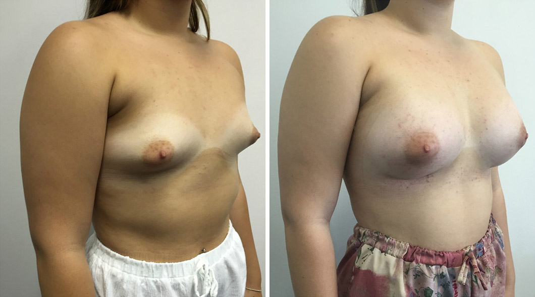 Patient 1 tuberous breast before and after from an angle