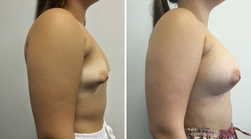 Patient 1 tuberous breast before and after from the side