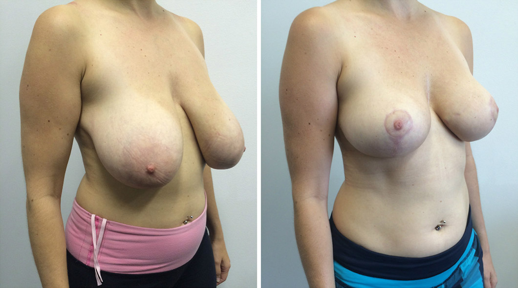 Patient 2 breast reduction before and after from an angle