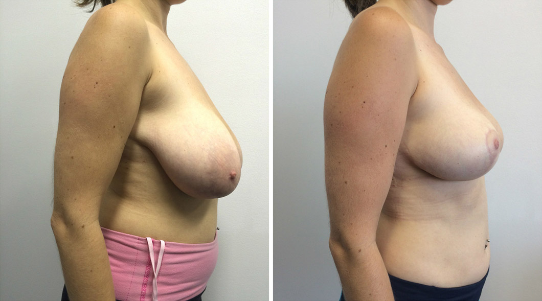 Patient 2 breast reduction before and after from the side