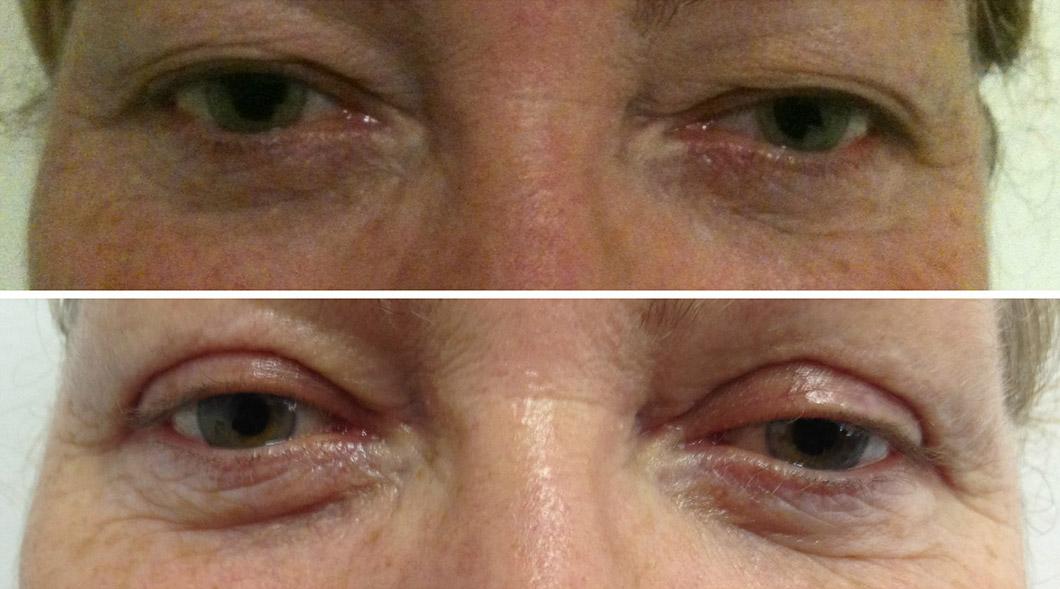 Blepharoplasty / Eyelid Surgery Gold COast | Sculpted Clinic