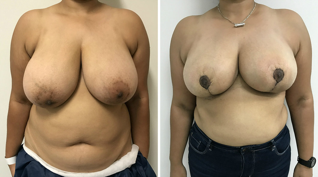 Patient 3 breast reduction before and after