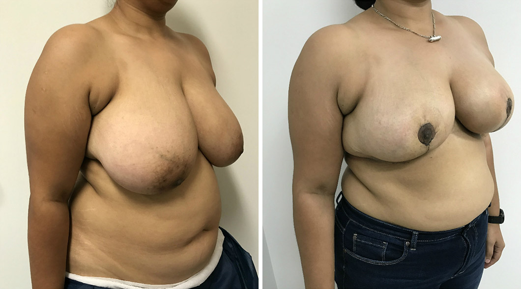 Patient 3 breast reduction before and after from an angle