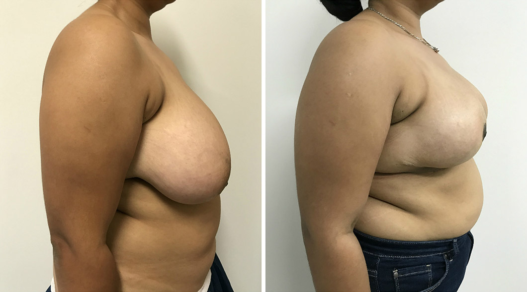Patient 3 breast reduction before and after from the side