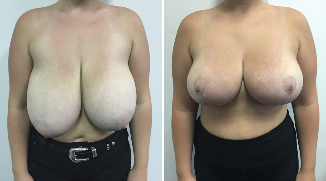 Patient 4 breast reduction before and after