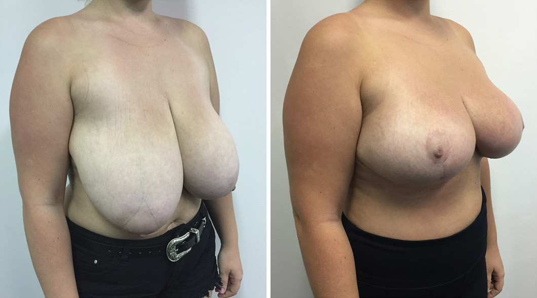 Patient 4 breast reduction before and after from an angle