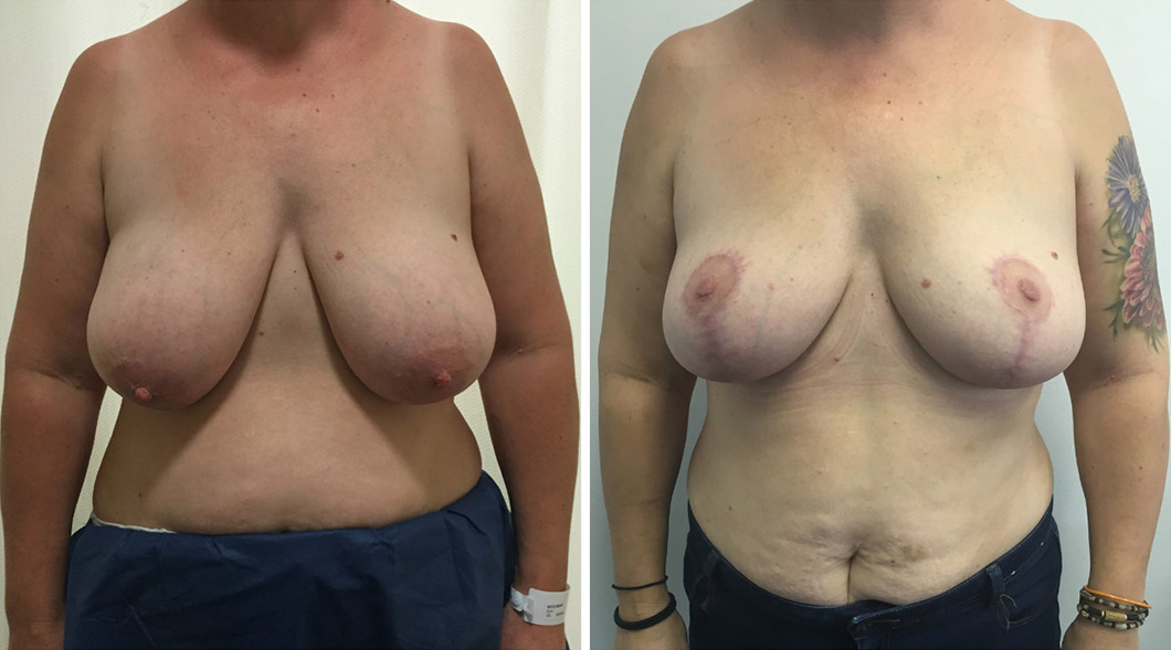Patient 5 breast reduction before and after