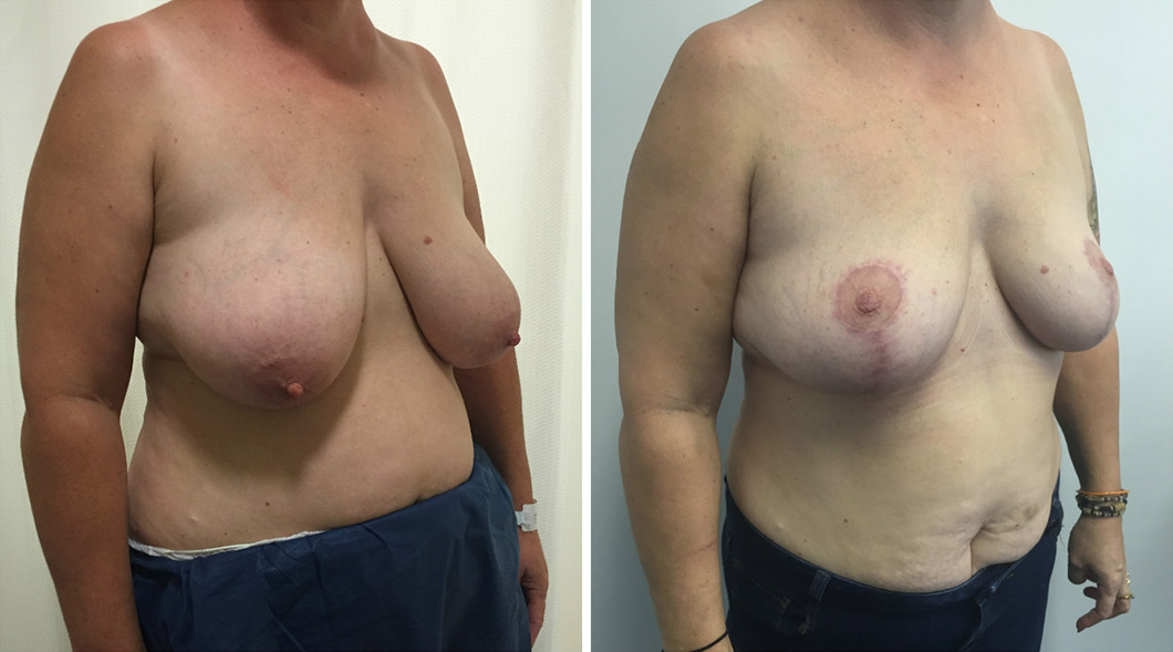Patient 5 breast reduction before and after from an angle