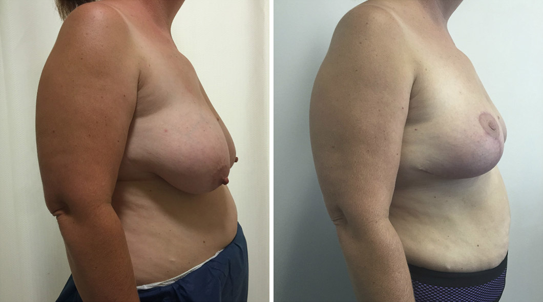 Patient 5 breast reduction before and after from the side
