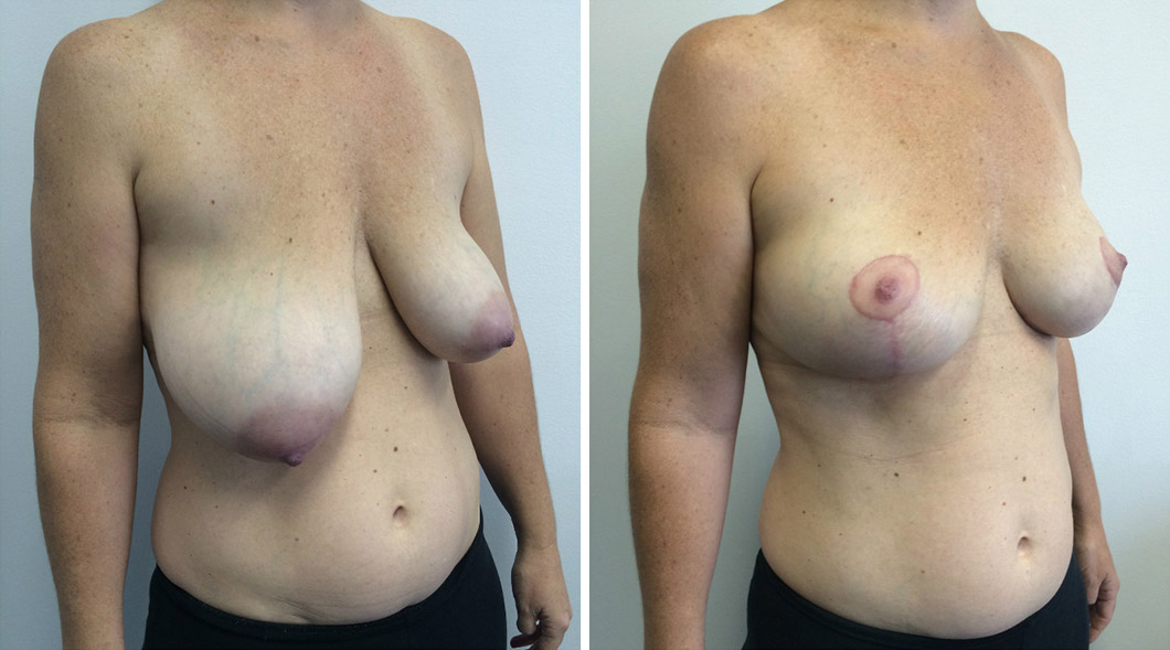 Patient 6 breast reduction before and after from one angle