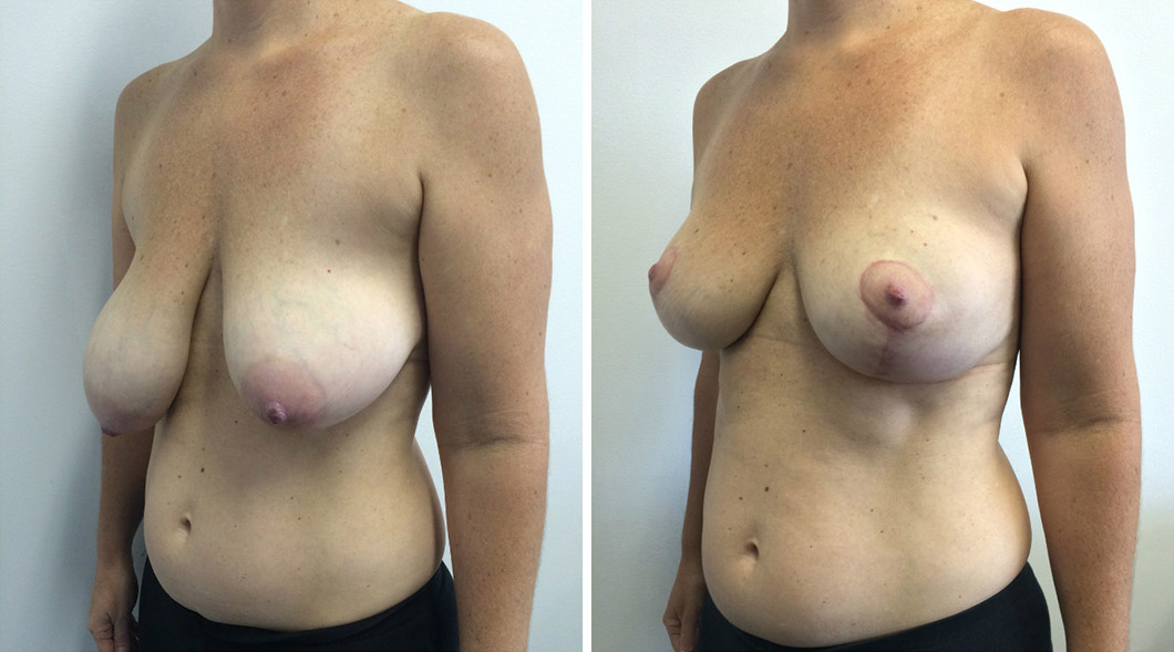 Patient 6 breast reduction before and after from another angle