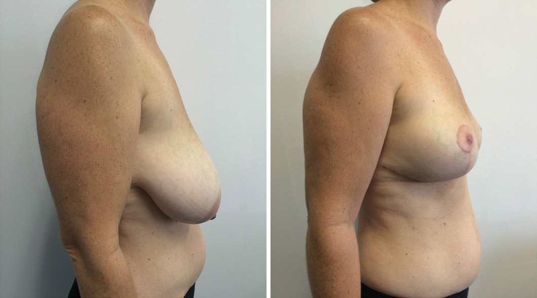 Patient 6 breast reduction before and after from one side