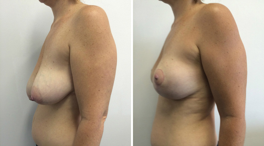 Patient 6 breast reduction before and after from the other side