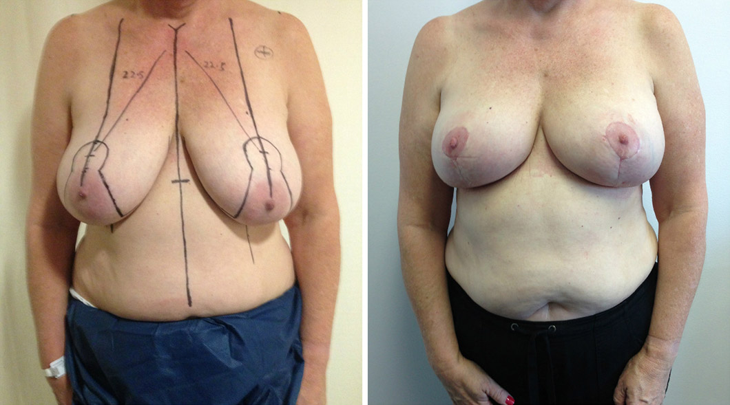 Patient 7 breast reduction before and after