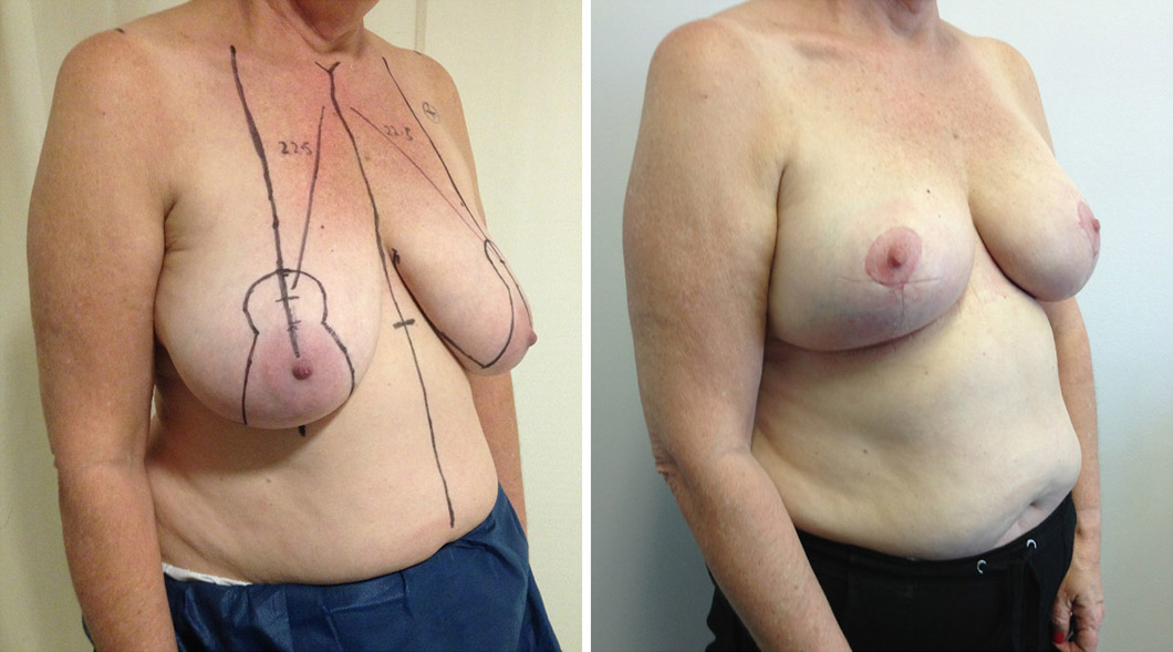 Patient 7 breast reduction before and after from an angle